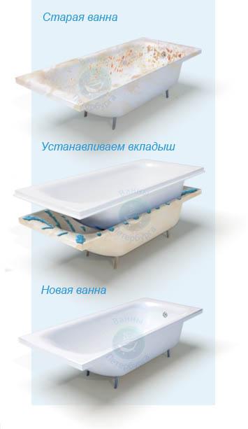 Материалы для установки акрилового вкладыша